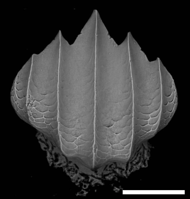 Silky shark (Carcharhinus falciformis) dermal denticle (275x). Denticle isolated from the shark body. Scale bar = 100µm.